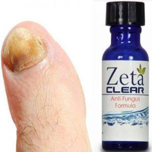 Zeta Clear - du champignon des ongles - site officiel - effets secondaires - sérum